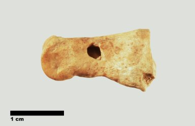 Archaeological bone